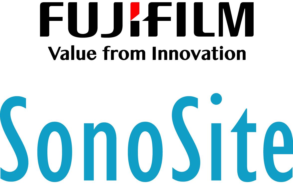 FujiFilm SonoSite